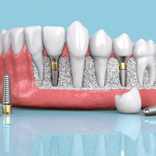 What Are Dental Implants? Eligibility, Benefits, and Care Tips